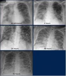 mediform.sk PROGRESIA OCHORENIA U PACIENTA S COVID-19 NA CT A RTG 12